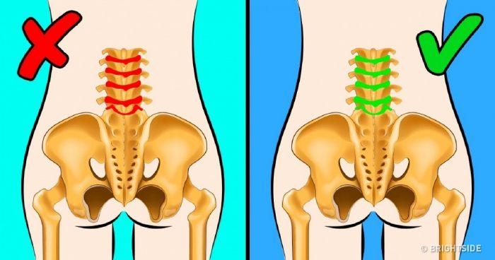súlyos derékfájás térdfájdalom hogyan kell kezelni