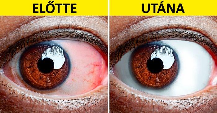 a látás normális mutatók