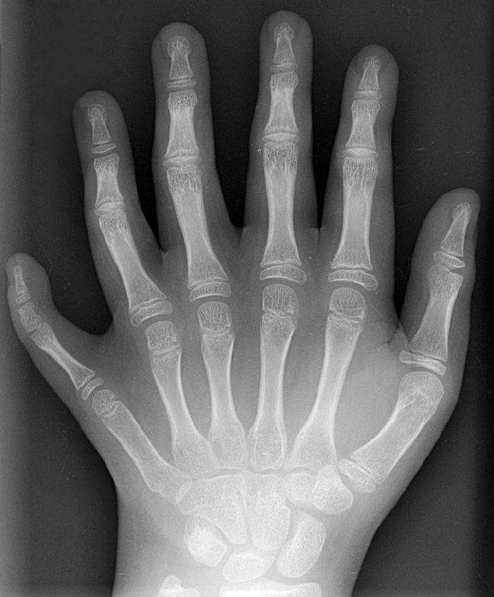 emberi röntgensugárzás