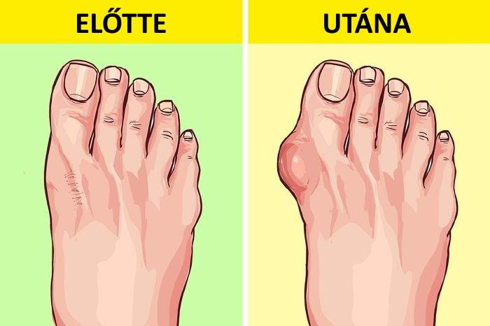 krémhatás a lábak ízületeire váll torzító kezelés