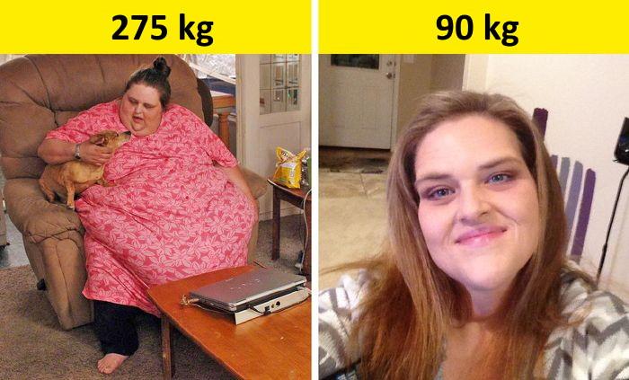 diéta a gyomor bypass előtt és után