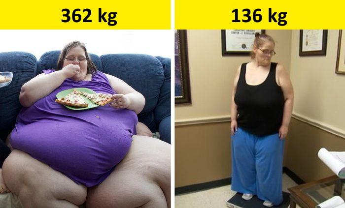 fogyókúra 150 kg felett)